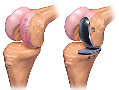 Unicompartmental Joint Replacement